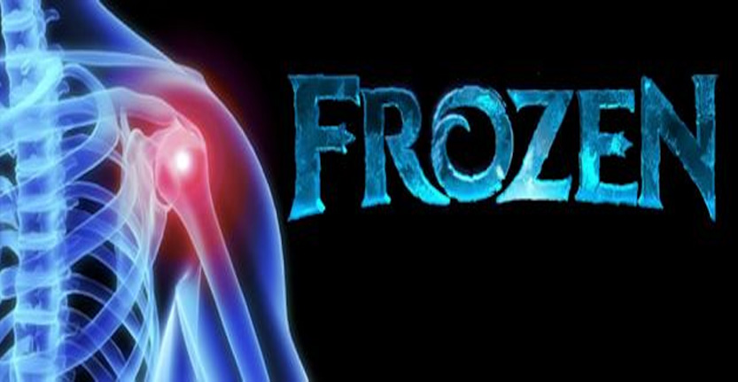 Are you suffering from frozen shoulder? Here's what you need to know