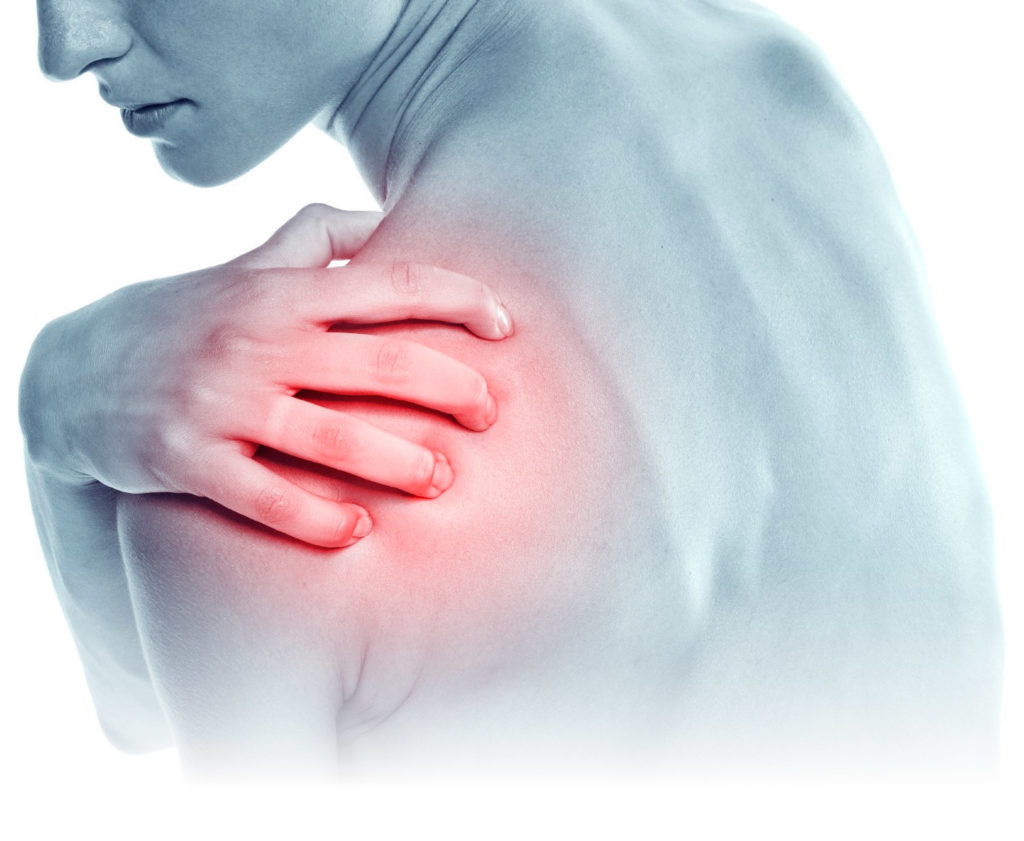 Rotator cuff tear and impingement: All you need to know.