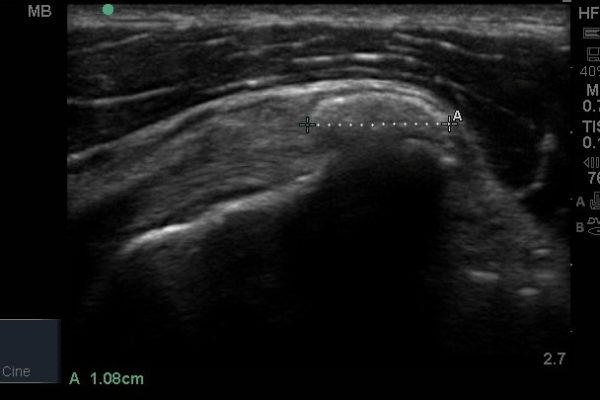 Calcific cuff tendinitis ultrasound scan